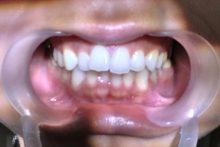 親知らず抜歯体験2
