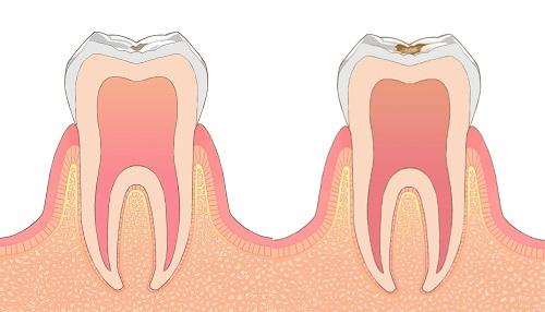 歯石除去をしないと虫歯や歯周病の原因になります。