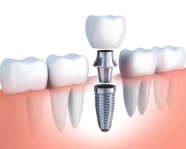 大阪淀屋橋で各種メーカのインプラントを取り扱っているHANA intelligence歯科・矯正歯科はインプラントの費用を安くしています。