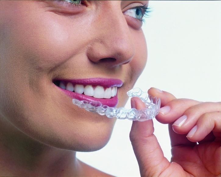大阪でインビザラインが安く出来るHANA Intelligence 歯科•矯正歯科