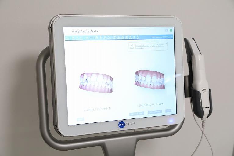 大阪のHANA Intelligence 歯科•矯正歯科のインビザライン矯正では、ITEROを使用します。
