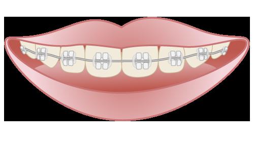 大阪で矯正の料金をお安くしているHANA Intelligence 歯科•矯正歯科