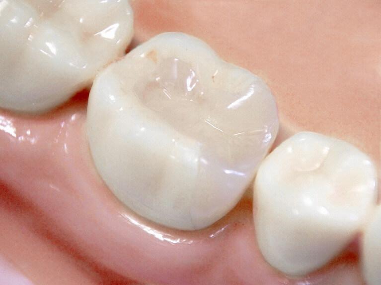 大阪でセラミックの治療費が安いHANA intelligence歯科・矯正歯科