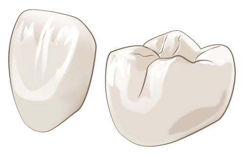 セラミックの料金が安い|3万円から作成可能|大阪のHANA intelligence歯科・矯正歯科