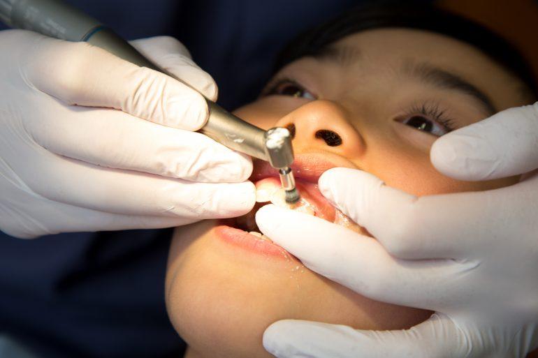 歯周病予防にPMTC