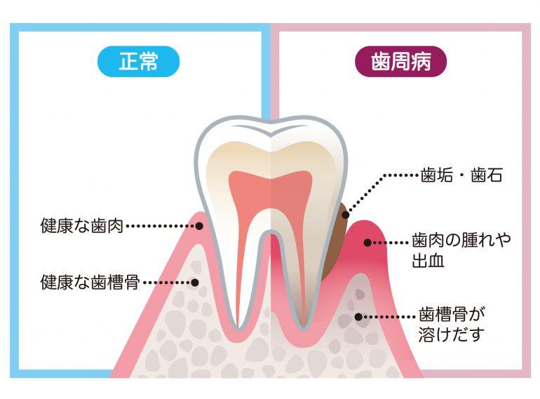 歯石と歯周病について